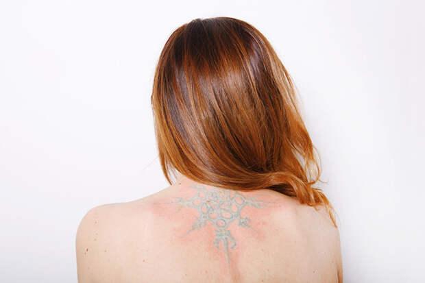 «Корона есть, но я уже не королева»: как живут люди с неудачными татуировками