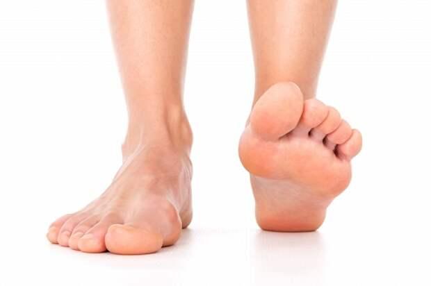 Плоскостопие: 5 упражнений, которые снимут боль и напряжение мышц