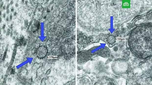 Ученые предупредили о проблемах с потенцией из-за коронавируса