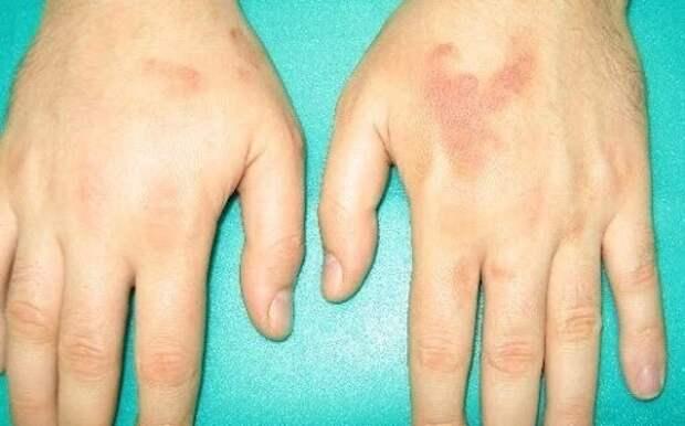Аллергия и кожные проявления