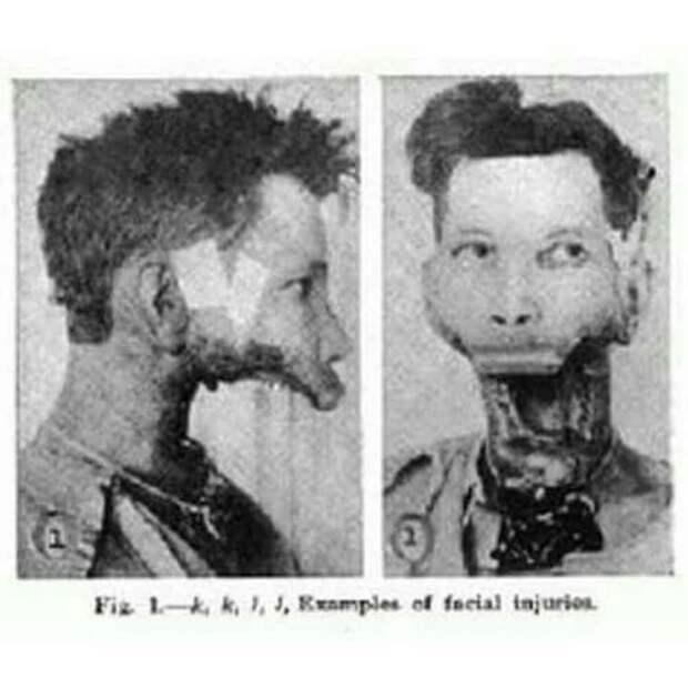 12. Человек, который потерял челюсть в результате ранения медицина прошлого, медицинская процедура, медицинские истории