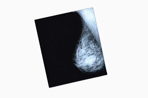 Что нужно знать о раке груди: От факторов риска до профилактики