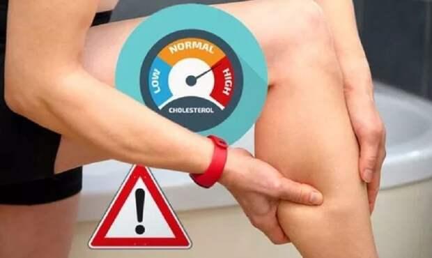 Медики назвали самые распространенные симптомы высокого холестерина