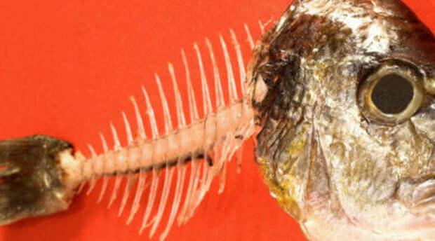 Подавились рыбьей костью: как вытащить