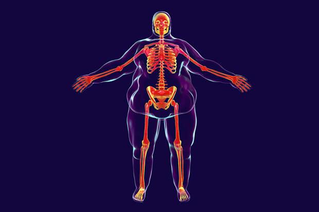 Как похудеть в ногах мужчине?