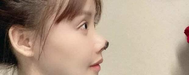 Китайская актриса Гао Лю пострадала после неудачной пластики носа