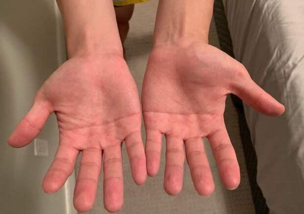17 интересных случаев, когда люди показали изюминки своего тела, которые делают их непохожими на других