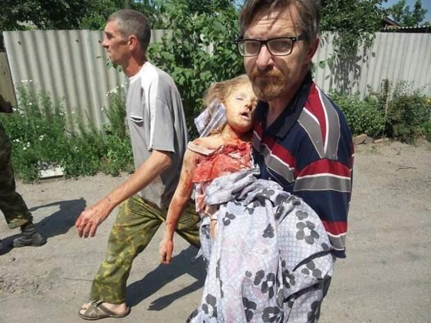 ООН подсчитали количество погибших и раненых мирных жителей Донбасса