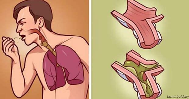 Вот лучшие способы вывести из организма лишнюю слизь