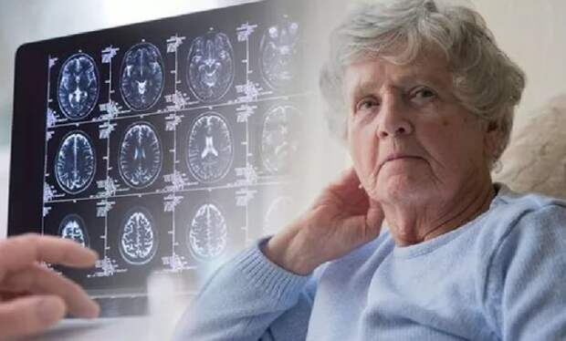 Врачи назвали «лицевой» признак сосудистой деменции
