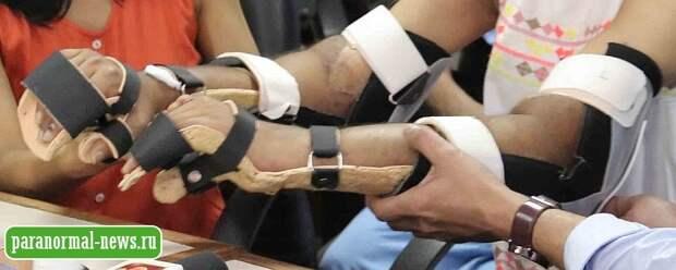 Женщине пересадили мужские руки и у них изменился цвет кожи, а пальцы стали более тонкими