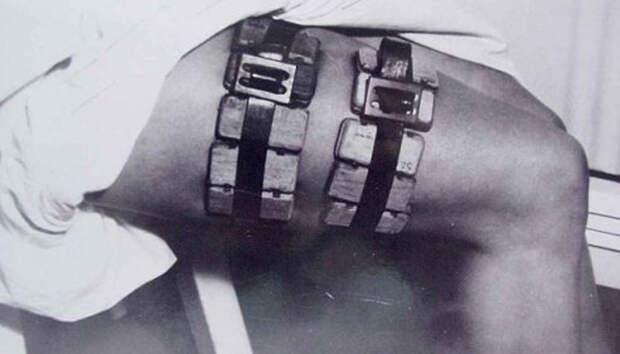 7 вызывающих дрожь врачебных инструментов прошлого