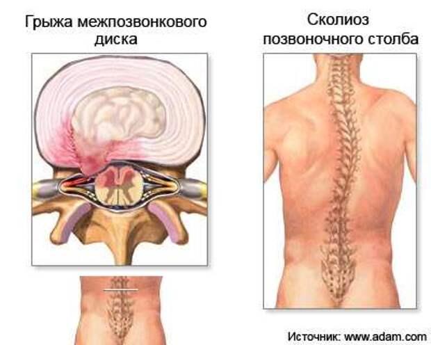 hernia_intravertebralis2 copy