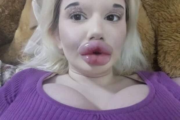 Рекордсменка по объему губ намерена еще больше их увеличить