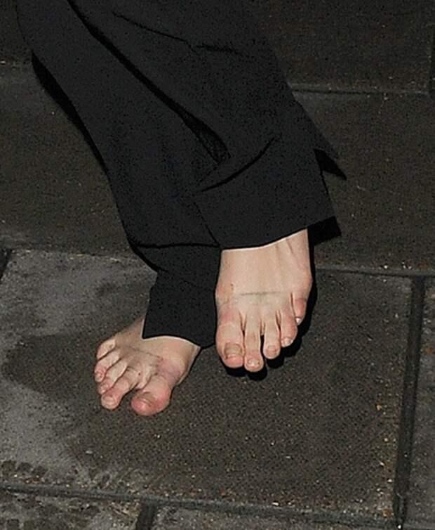 Взгляд снизу: угадайте, каким знаменитостям принадлежат пальцы ног нафотографиях