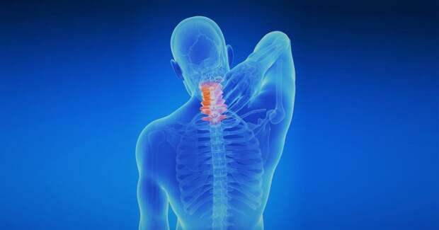 Шейный спондилез - опасная болезнь, от которых у вас покалывает в руках! Вот симптомы