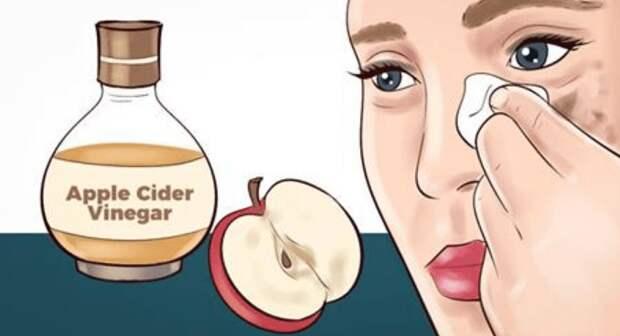 6 удивительных способов улучшить состояние кожи с помощью яблочного уксуса