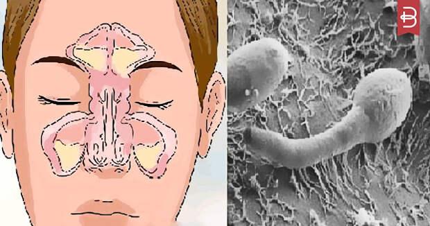 Проблема заложенности вашего носа в вашем кишечнике