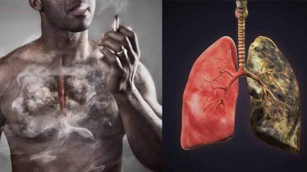 Восстанавливаются ли клетки легких после того, как человек бросил курить?