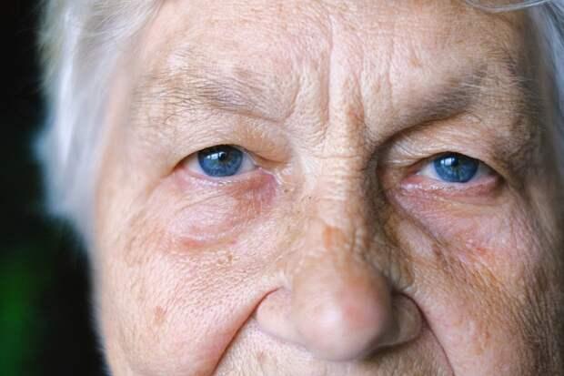 Побочные эффекты статинов: неблагоприятное действие на глаза - диплопия