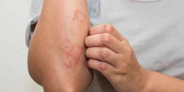 Сверьте ваши симптомы с признаками аллергии