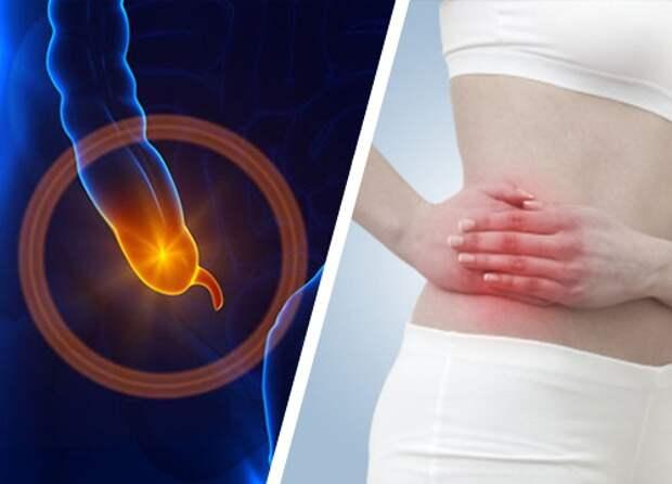 Аппендицит: симптомы, которые нужно знать