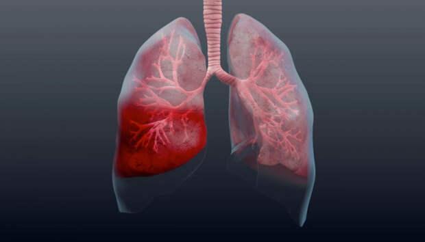 Более 20 человек госпитализированы с пневмонией в Карелии