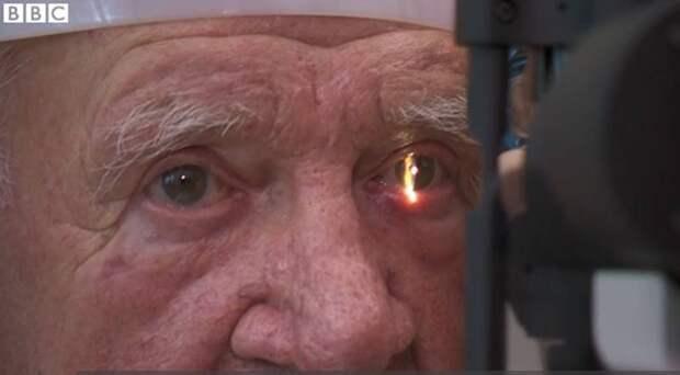 В Великобритании впервые вживили пациенту бионический глаз