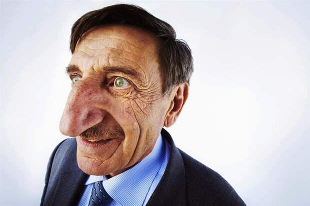 Махмед Озирек — человек, у которого самый длинный нос в мире — 8,8 см