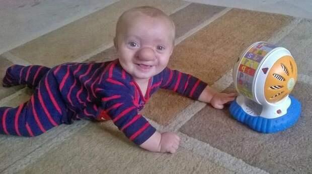 Реальный Пиноккио: мальчик родился с частью мозга в носу Реальный Пиноккио, мальчик, нос