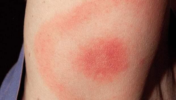 3,3 тыс человек в Подмосковье обратились за медпомощью после укусов клещей с начала сезона