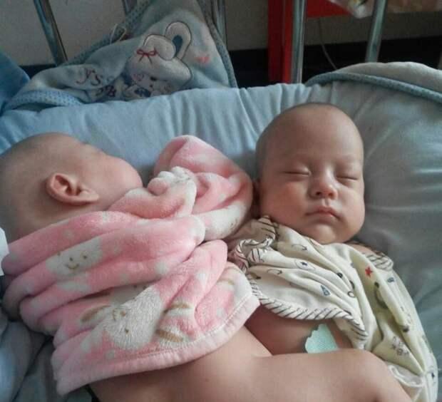 Успешная операция по разделению сиамских близнецов с применением технологий 3D-печати 3d-печать, близнецы, операция