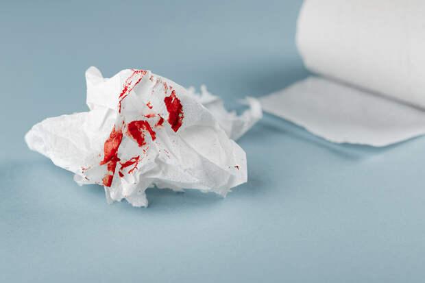 Скорая первая помощь: что делать при носовых кровотечениях и порезах у детей