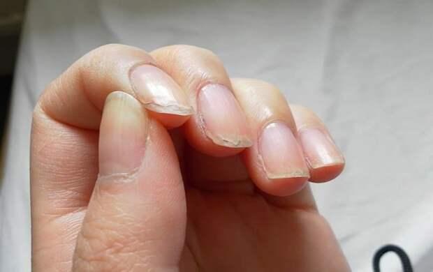 Почему слоятся ногти и появляются судороги?