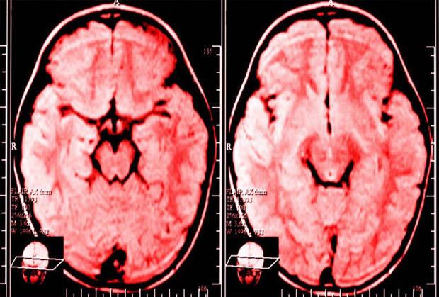 Как постоянные жалобы влияют на ваш мозг, согласно исследованию