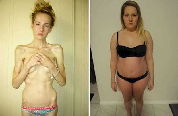 До и после: история анорексички анорексичка, анорексия, до и после