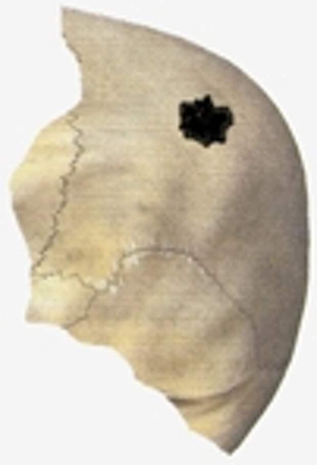 Рисунок простреленного фрагмента черепа