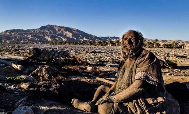 UwilKbH Так выглядит человек, который не мылся 60 лет