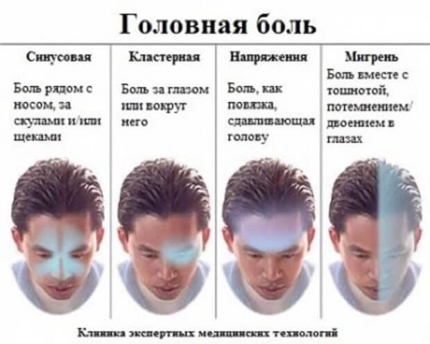 ХИЖИНА ЗДОРОВЬЯ. Самый полный гид по головной боли