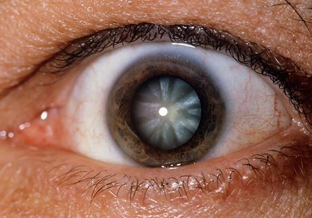 Глаза 1