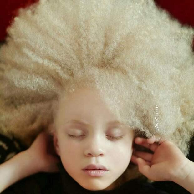 природа, памятники как видят люди альбиносы фото заводчики начинают