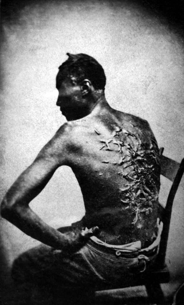 21. Бывший раб показывает свои шрамы от битья, штат Луизиана США, 1863 г. исторические фотографии, история, фото