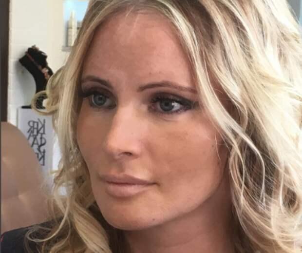 Дана Борисова шокировала фанатов стареющим лицом