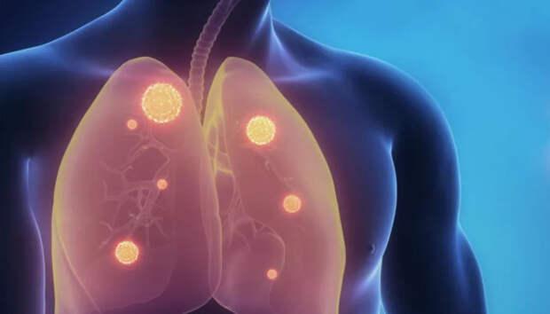 Около тридцати жителей Карелии госпитализированы с пневмонией за сутки