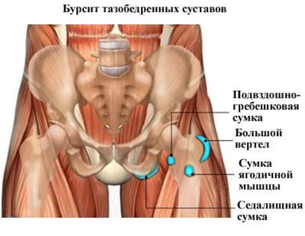 bursit-prichiny-simptomy-lechenie_4