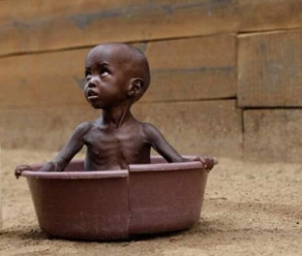 В мире все больше людей страдают от голода, в 2020 г. ситуация ухудшится – ООН