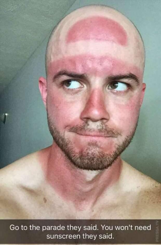 Когда люди недооценили солнце и обгорели…