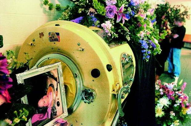 Железная леди: Как и почему Диана Оделл 60 лет прожила в «танке» для вентиляции легких