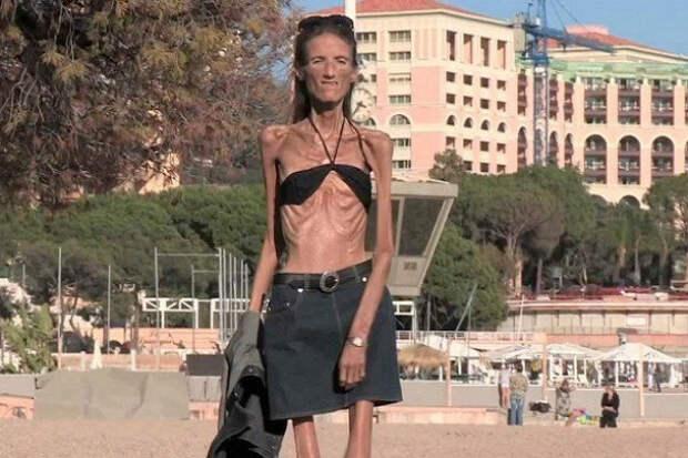 Жизнь исмерть самой худой женщины планеты