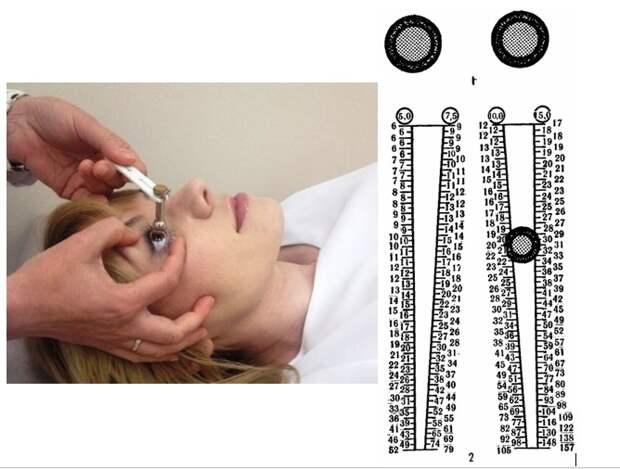 Тонометрия — измерение внутриглазного давления при глаукоме